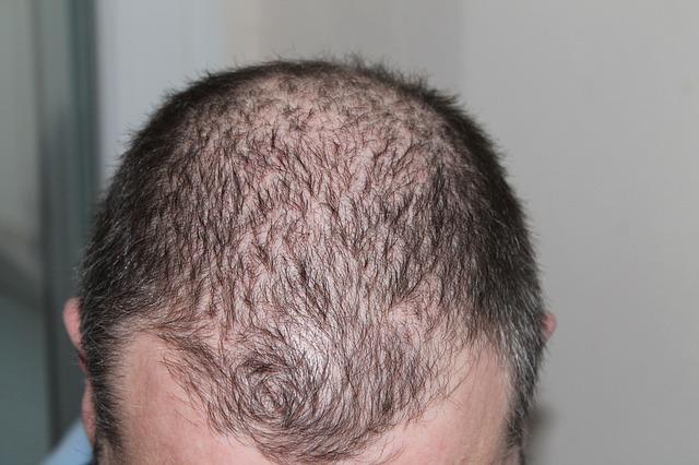 Så går en hårtransplantation till.