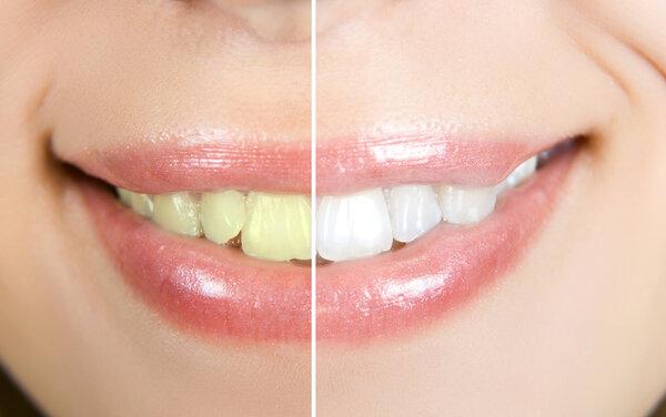 Vitare tänder med tandblekning