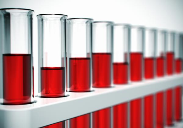 Ta ett blodprov för att avgöra vilken blodgrupp du tillhör